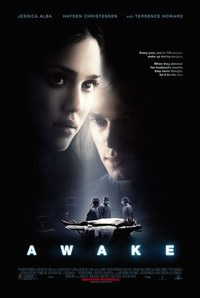 Poster Imagine Awake (2007) - Sub anestezie